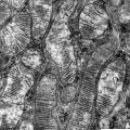 Fot. 4. Rattus. Przekrój przez nerkę szczura, mitochondria. Mikroskop elektronowy transmisyjny.